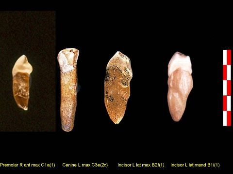 10 CN H.heidelbergensis teethr